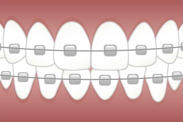 braces, teeth, dentist
